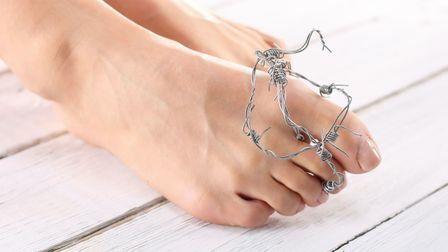 Xто делать, когда врастает ноготь на ноге, вам ответит только квалифицированный специалист.
