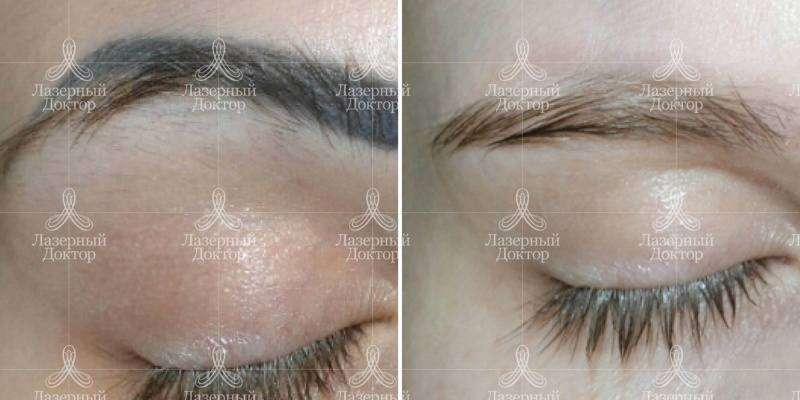 удаление перманентного макияжа в приморском районе
