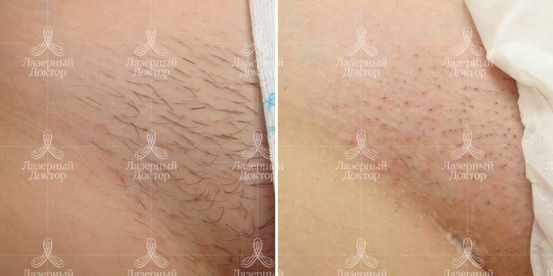 Лазерная эпиляция вокруг сосков спб борьба с акне лечение в томске