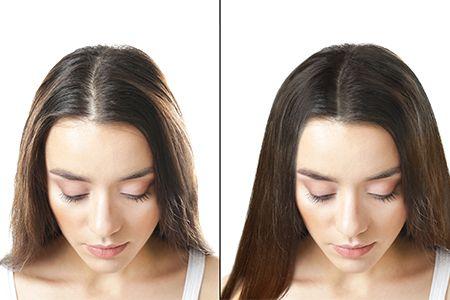мезотерапия для волос до и после