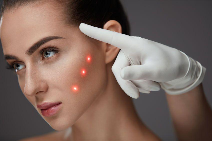 Лазерная косметология, лазерные процедуры для лица / Лазерный Доктор СПб