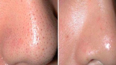 Лазерная чистка на лице